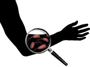flesh bacteria