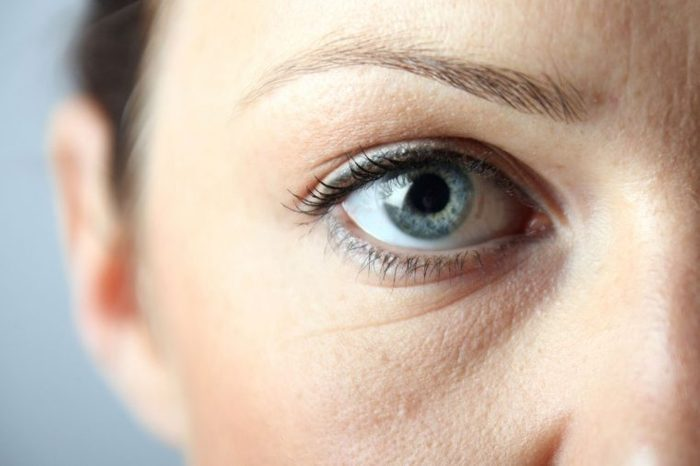 closeup of woman's eye with puffiness