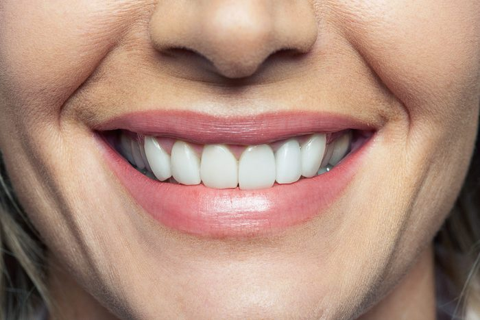 woman's smile with white teeth