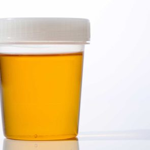 pee health liver disease