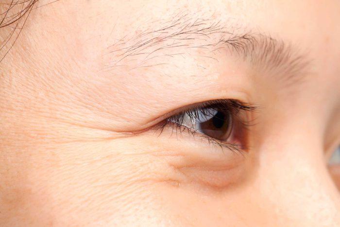 Closeup of wrinkles around an eye.