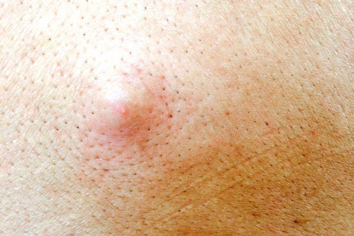Skin bump.