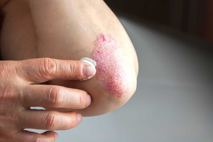 Applying ointment to psoriasis on an elbow.