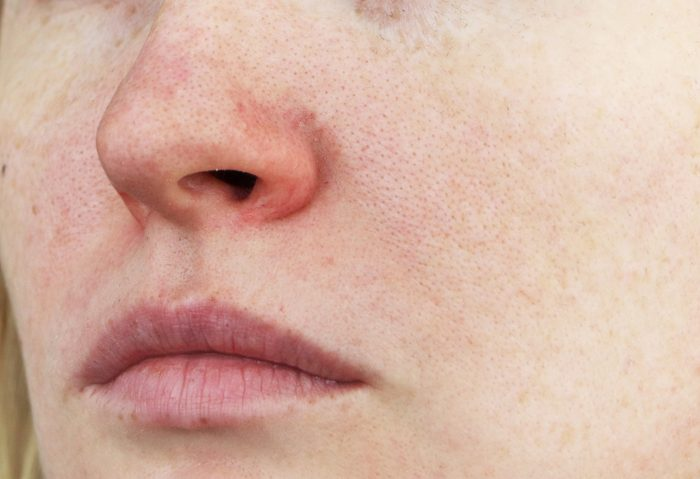 close up of redness on face