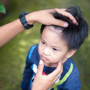 05-head-lice-bumps