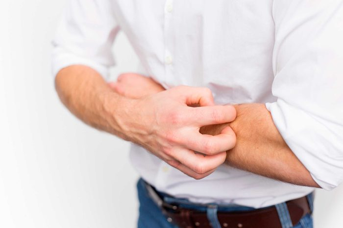 man in a white shirt scratching his forearm