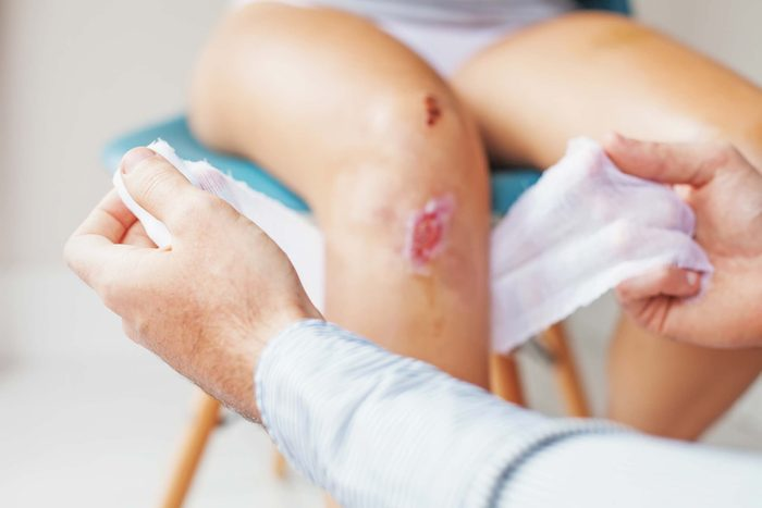 doctor's hands wrapping a gauze around a scraped knee