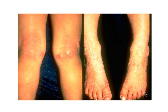 eczema on the back of the knees and on the tops of the feet