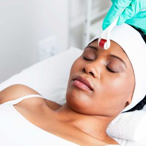 benefits_microneedling_hottest_skincare_trend_deep_wrinkles