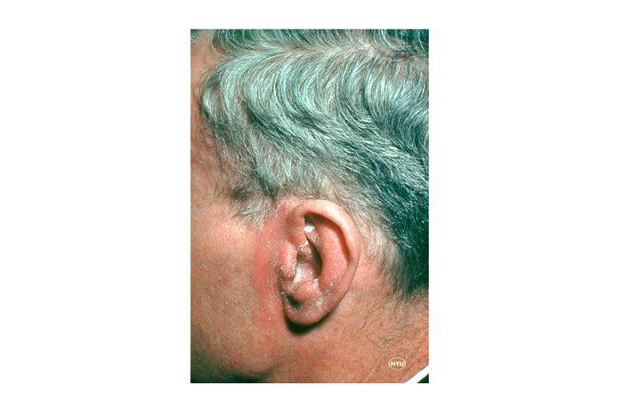 Seborrheic dermatitis on the ear