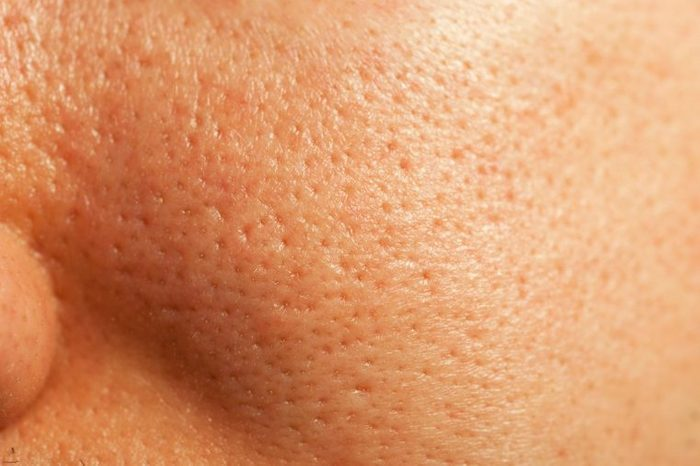 Close-up image of a person's skin with large pores.