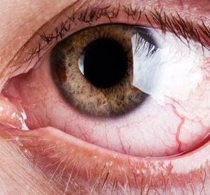 02_Allergies_Reasons_You_have_bloodshot_eyes