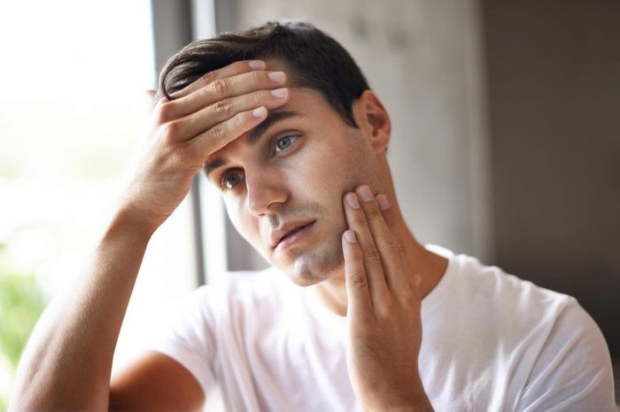 Man in a white shirt holding his forehead and rubbing the skin on his cheek.