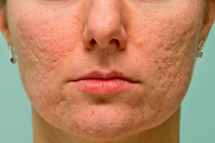 Boxcar acne scars on a woman's cheeks and chin.