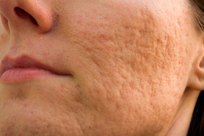 Woman's cheek that has rolling acne scars.