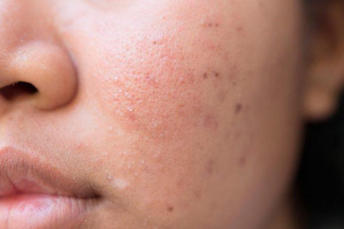 Hyperpigmentation acne scars on a woman's cheek.