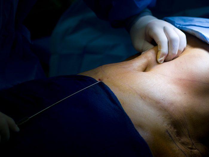 closeup of liposuction procedure on stomach