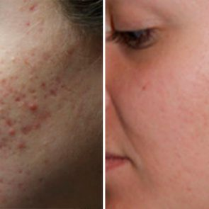 The-5-Types-of-Acne-Scars-and-How-to-Treat-Them-FT