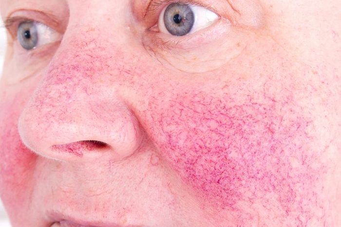 Person with rosacea on their skin (cheeks and nose).