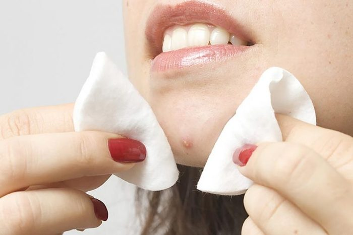 Woman cleaning a zit on her face with acne pads.
