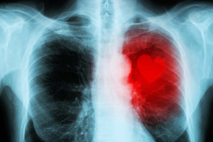 chest x-ray with illustration of heart