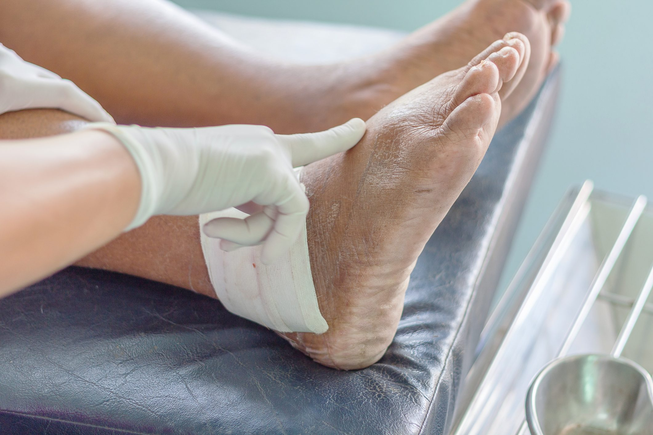 ankle/foot gout
