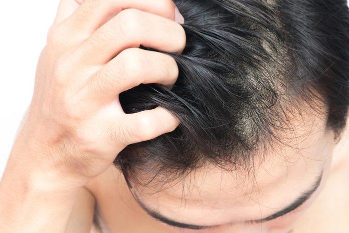 main itching hair on head