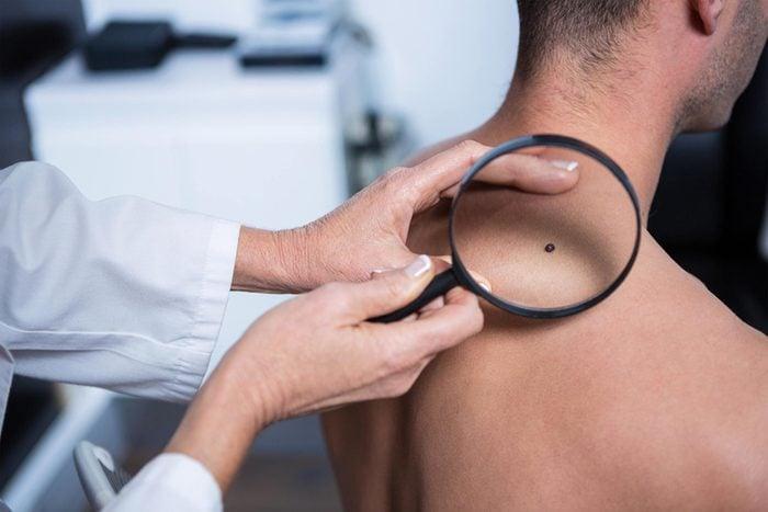 doctor examining mole on man's back