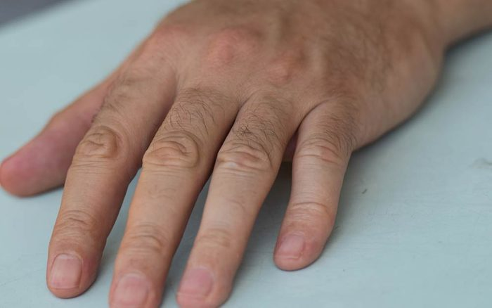 If-You-Have-This-One-Specific-Mark-on-Your-Fingernail,-You-Could-Have-Cancer_643787620_Liticia-ft