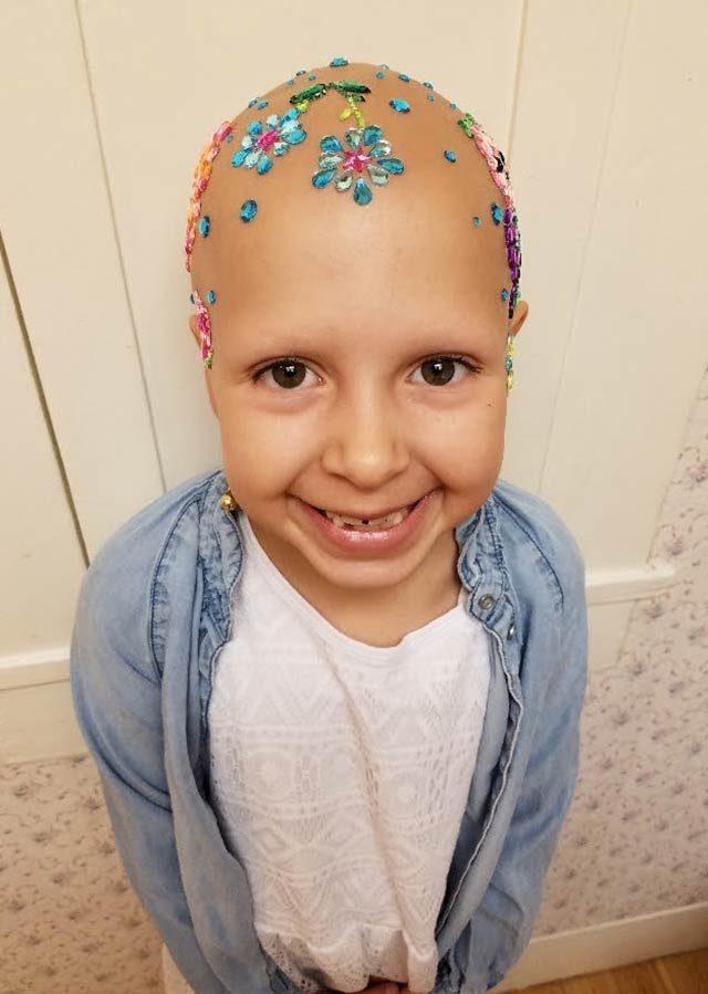 September-2017-HEROES-2-bald-is-beautiful-courtesy-Daniella-wride