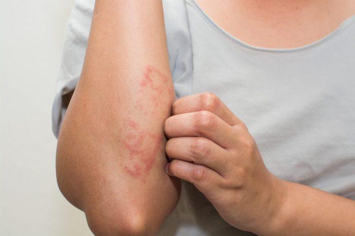 woman scratching itch arm skin rash