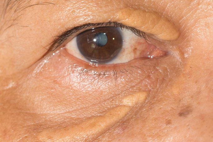 close up of an eye with xanthelasma