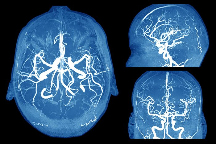 brain scans, top, side and front