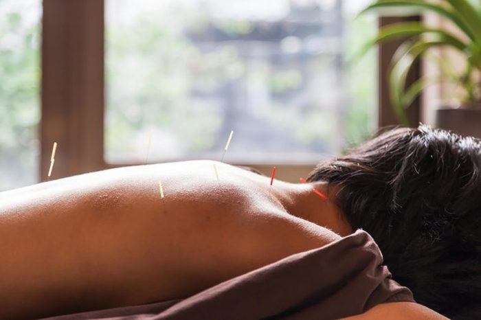 Woman with acupuncture needles in her back.
