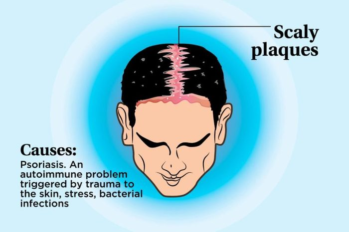 illustration of a person's scalp indicating scaly plaques