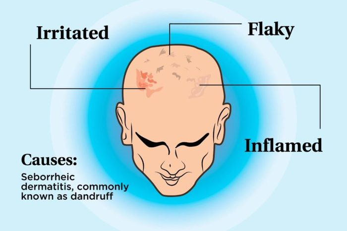 illustration of a person's scalp indicating irritation, flakes, inflammation