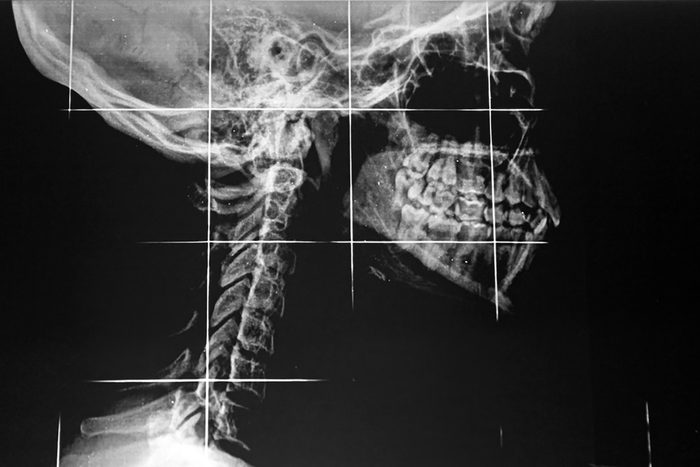 side x-ray of jaw and neck