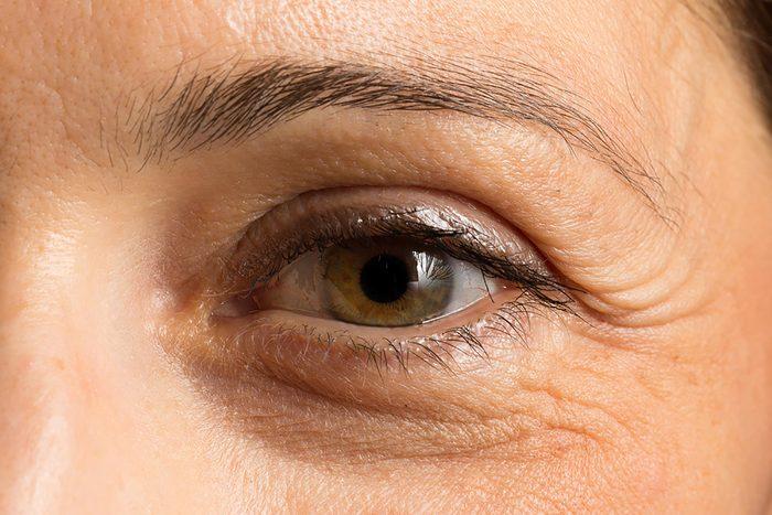 Closeup of a woman's under-eye dark circle.