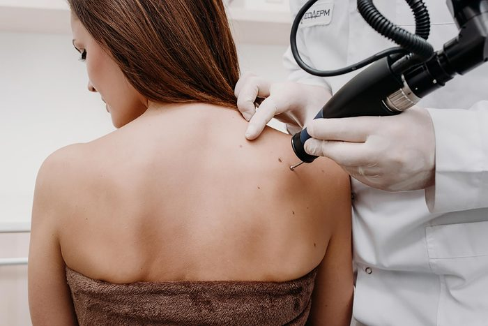 A woman getting skin tags removed by a dermatologist using a machine.