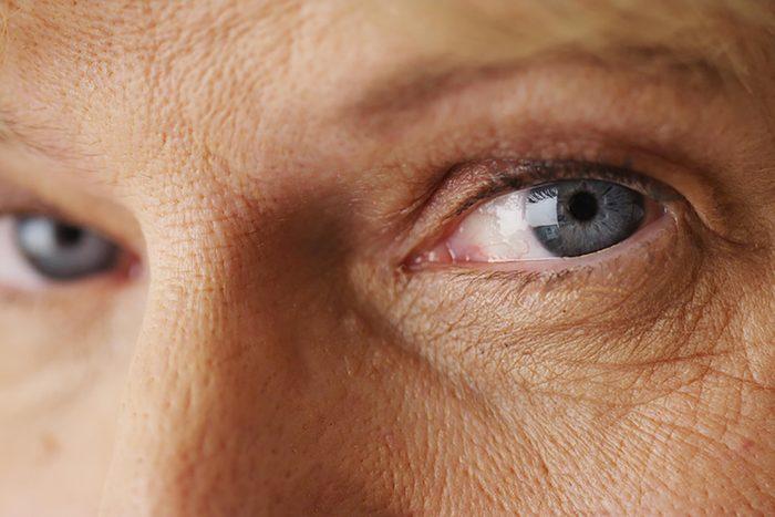Closeup of aging skin.