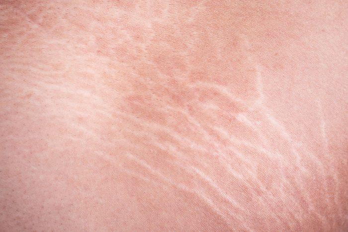 Closeup of stretch marks.