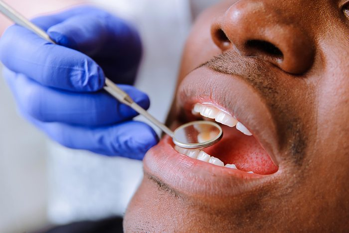 Dentist examining a man's teeth