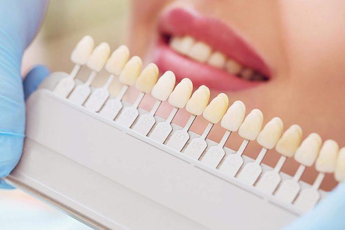 various shades of dental tones