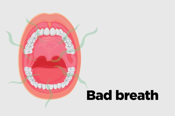 Illustration of an open mouth with bad breath.