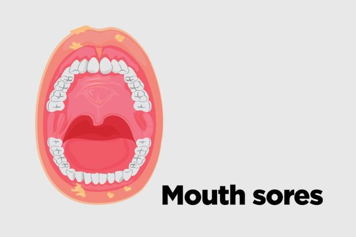 Illustration of an open mouth with mouth sores.