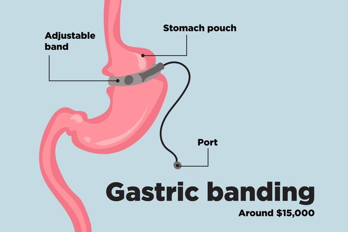 Top-Weight-Loss-Surgery-Procedures