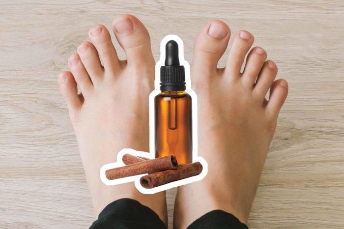 Cinnamon oil over feet