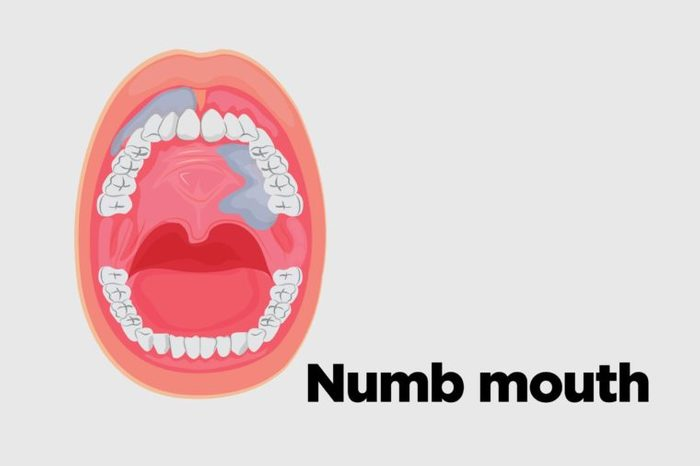 Illustration of an open mouth with numbness in the mouth.