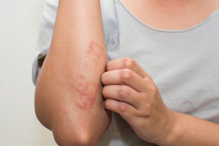 patient scracthing allergic rash dermatitis skin on elbow