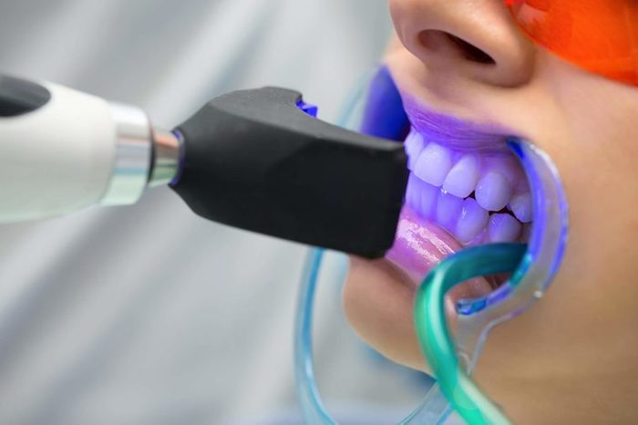 patient getting a Teeth whitening treatment